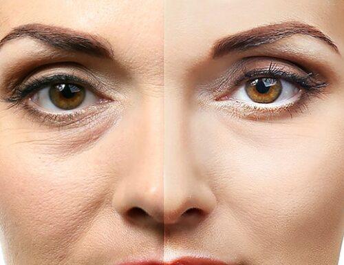 Sintomi e cause delle borse sotto gli occhi – Occhiaie