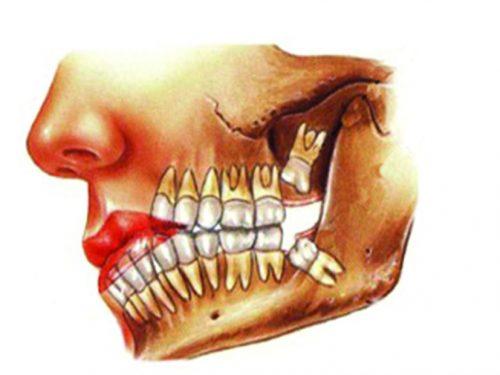 Perché bisogna farsi togliere i denti del giudizio? A cosa servono?